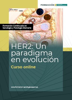 HER2: Un paradigma en evolución